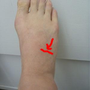 の 甲 痛み 足
